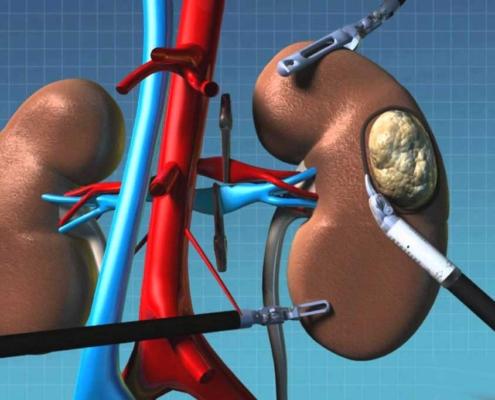 ρομποτική Ριζική νεφρεκτομή